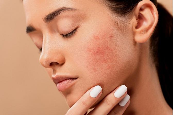 Frau mit Hautirritationen auf der Wange.