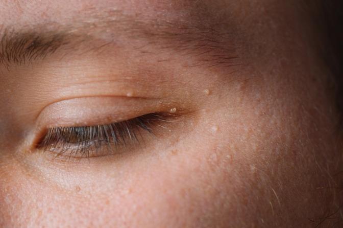Ein Gesicht mit Milien (weiße Pickel am Auge)
