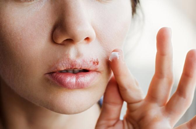Junge Frau macht Creme auf Lippenherpes.