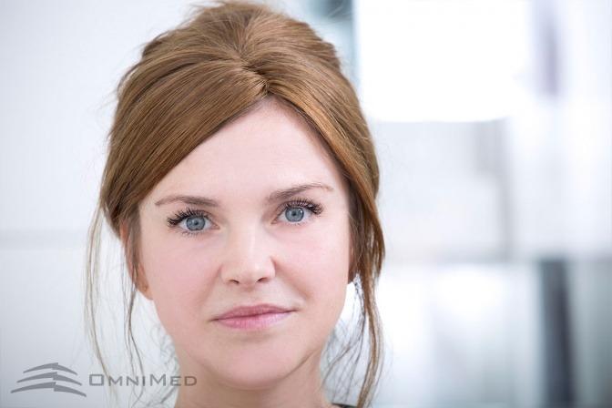 Eine Frau nach einem Fadenlifting bei Omnimed