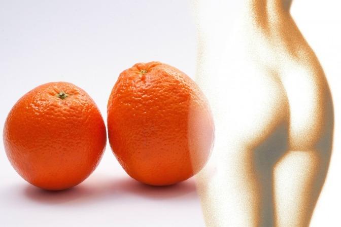 Eine Frau hat Orangenhaut (Cellulite)