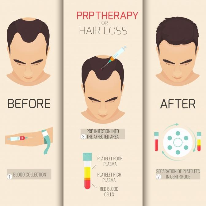 Eine Grafik zeigt, wie eine PRP Behandlung vor sich geht