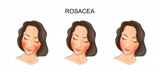 Grafik von Rosacea