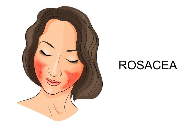 Eine Frau hat Rosacea
