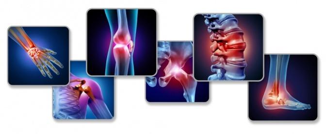 Schmerzpunkte im Skelett grafisch dargestellt