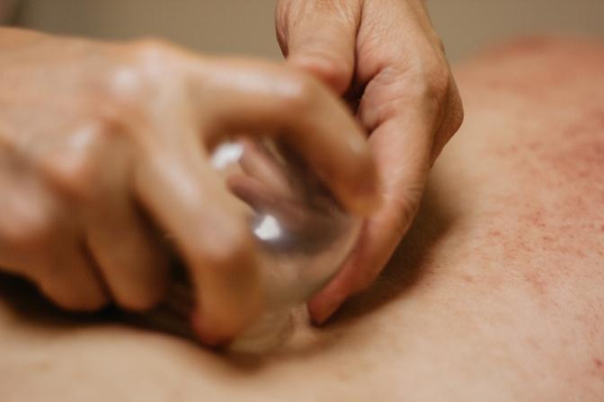 Ein Schröpfglas wird auf der Haut platziert