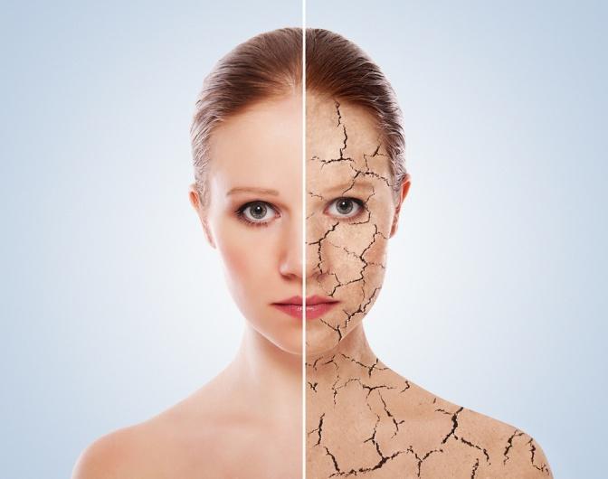 Hauptprobleme & Hautkrankheiten, Ursachen, Arten