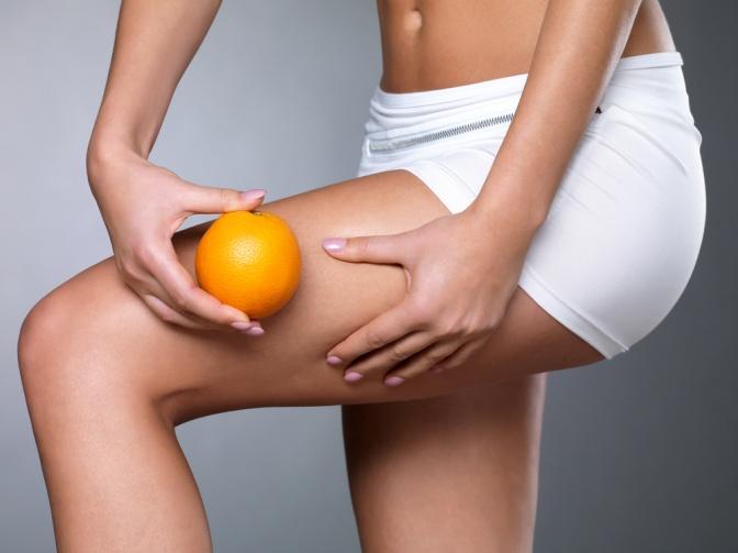 Besonders Frauen haben das Problem: Cellulite oder Orangenhaut