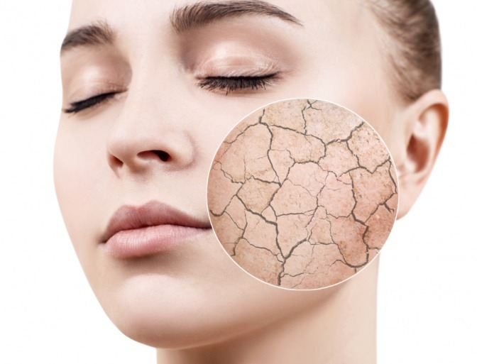 Mit Diesen Tipps Und Tricks Zu Mehr Feuchtigkeit Für Die Haut