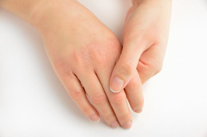trockene Haut an den Händen