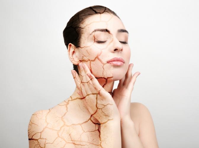 Eine Frau hat auf einer Seite trockene Haut, auf der anderen normale Haut