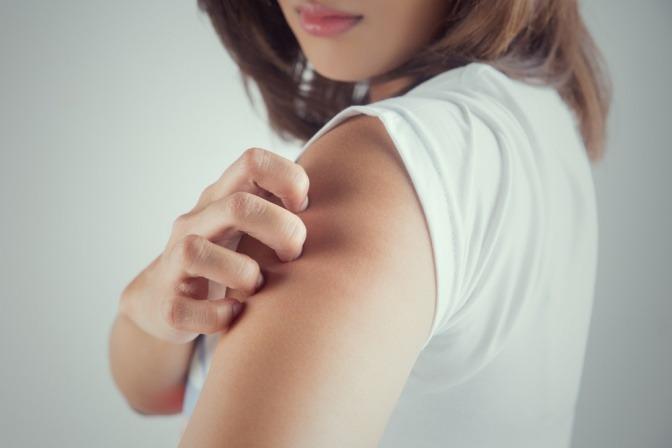 Eine Frau kratzt an ihrer trockenen und schuppigen Haut