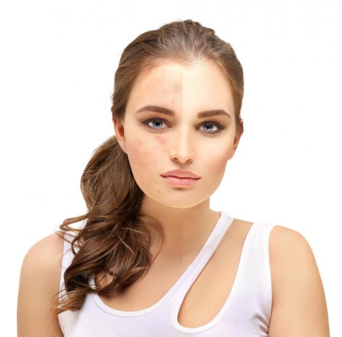 Mit Camouflage Make up kann man unreine Haut überdecken