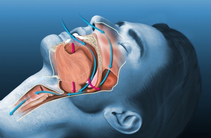Eine Grafik zeigt die Ursache von Schnarchen bei einem Mann