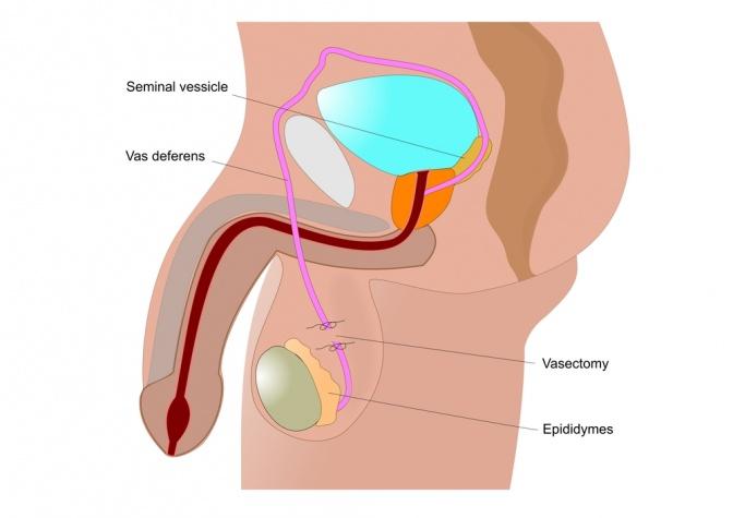 Eine Grafik zeigt die Schnittstelle bei einer Vasectomie