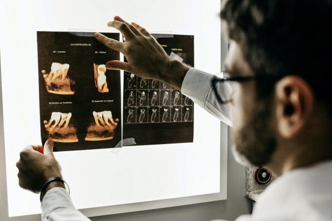 Ein Zahnarzt klärt die Erkrankung der Zähne mit Röntgenbildern ab