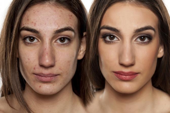 Frau einmal mit unreiner Haut und einmal mit schöner Haut