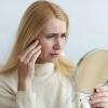 Eine Frau betrachtet ihre Hautausschläge im Gesicht