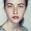 Eine Frau hat Pigmentflecken im Gesicht